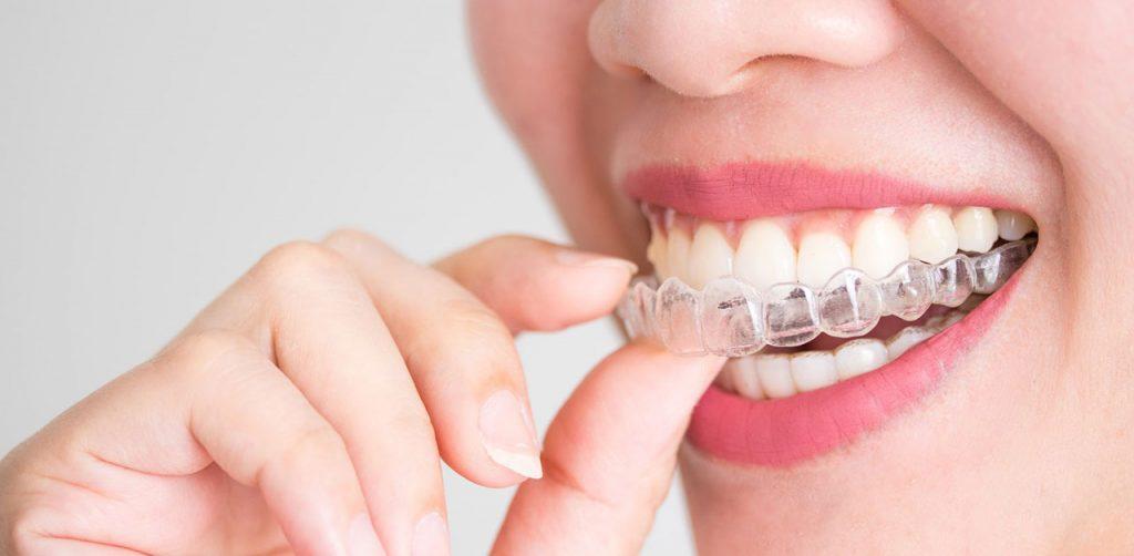 ortodoncia-invisible-malaga