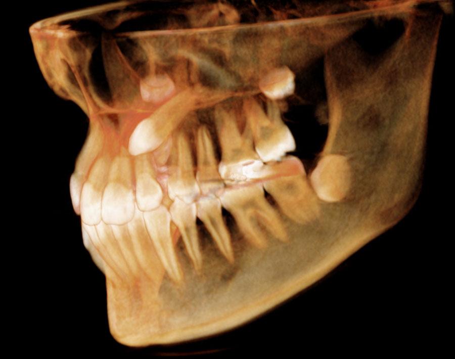 tac-dental-3d-malaga