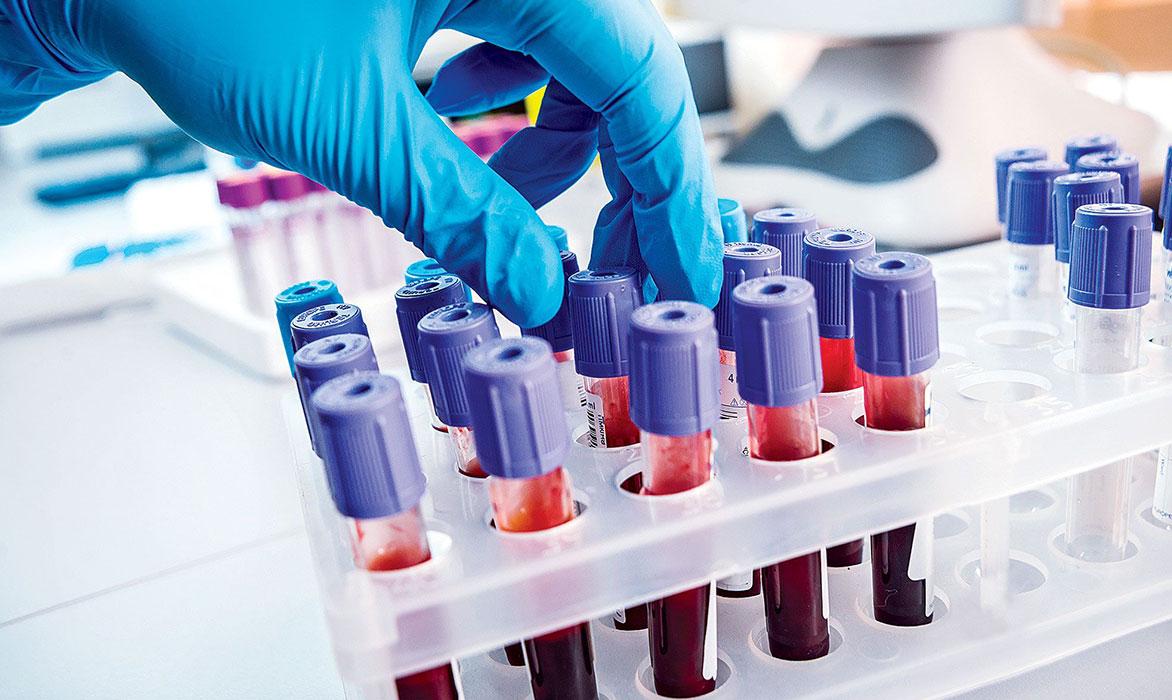analisis-de-sangre-malaga