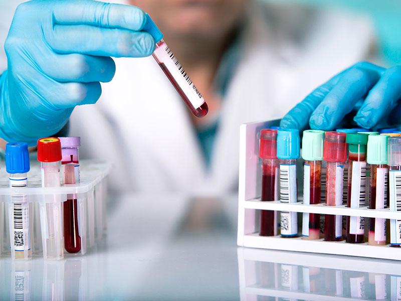 analisis-clinicos-malaga