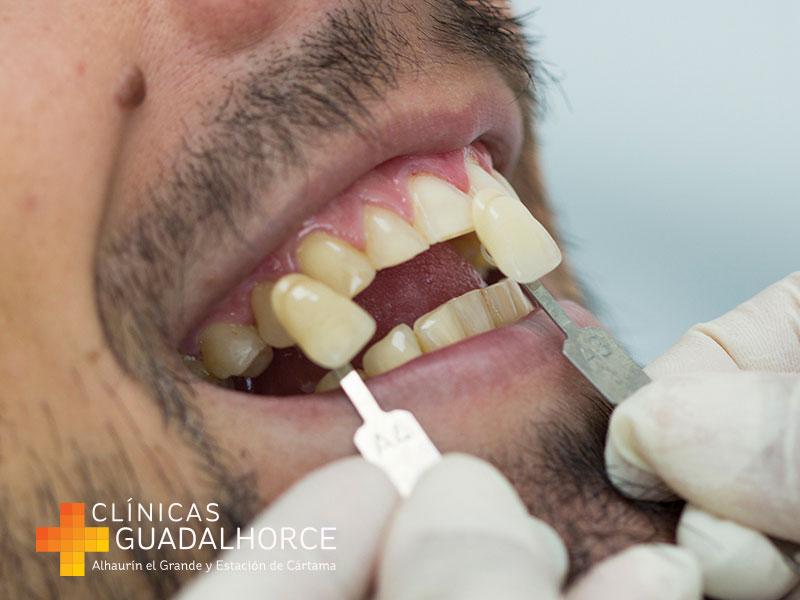 1-toma-muestras-blanqueamiento-dental