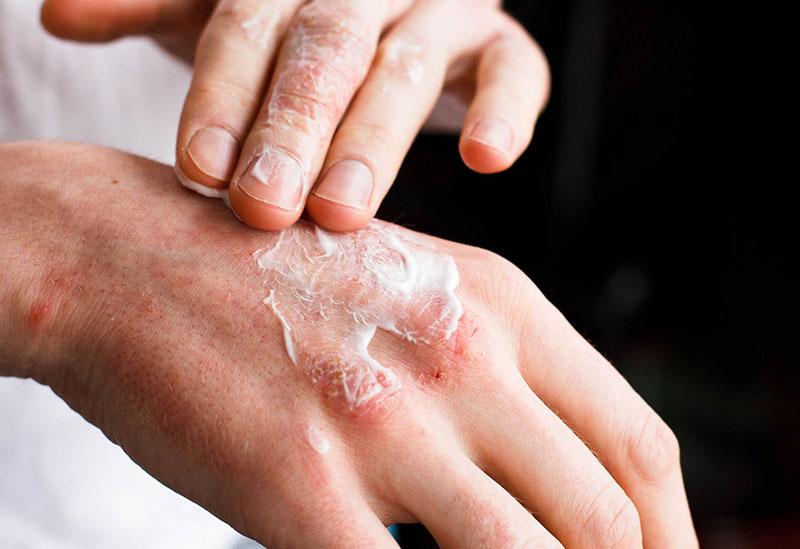 dermatitis-malaga
