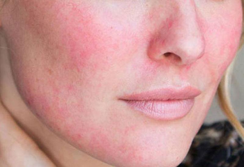 rosacea-dermatologo-malaga