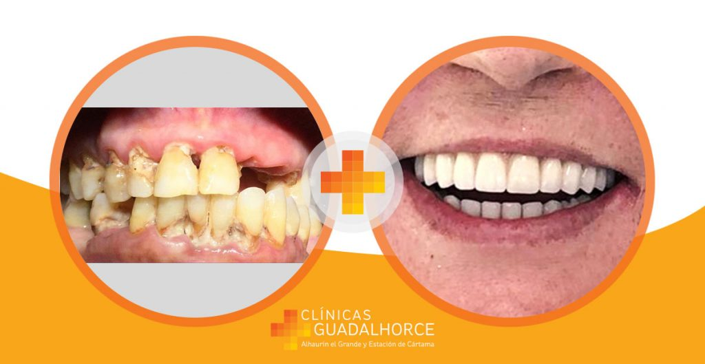 antes-despues-implantes-dentales