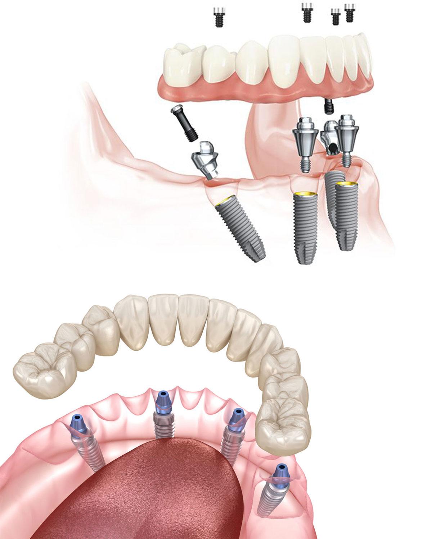 implantes-dentales-inmediatos-malaga