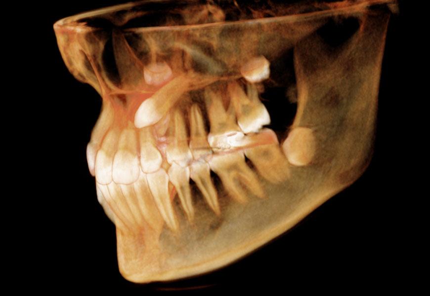 tac-dental-3d-implantes-malaga