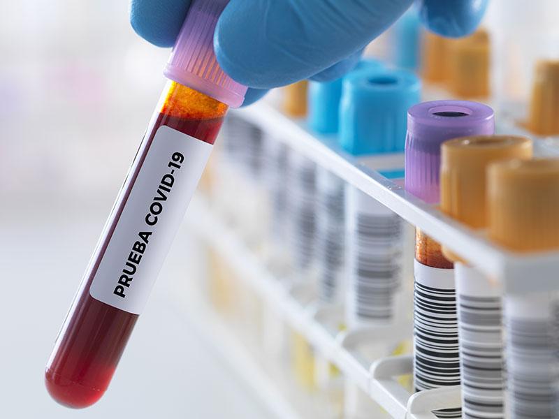 serologia-coronavirus-malaga