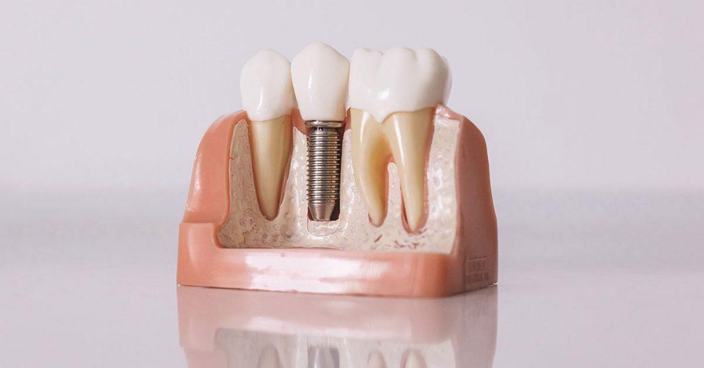 dentista-en-malaga-1