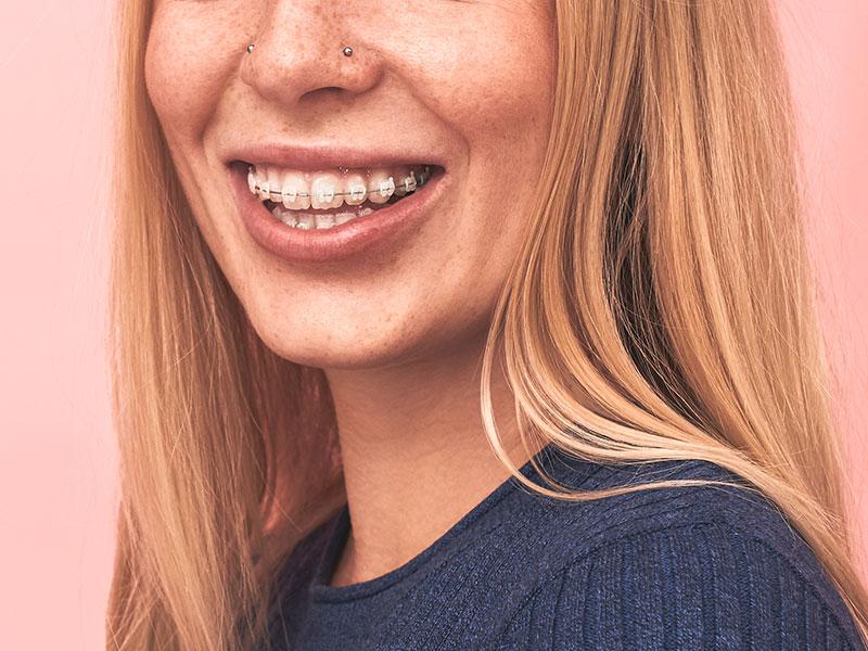 ortodoncia-estetica-malaga