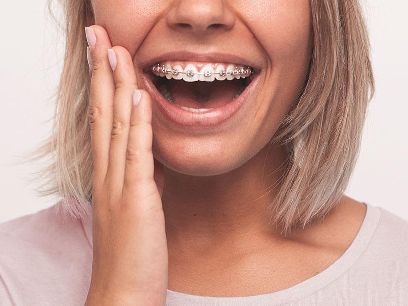 ortodoncia-fija-brackets-malaga-1
