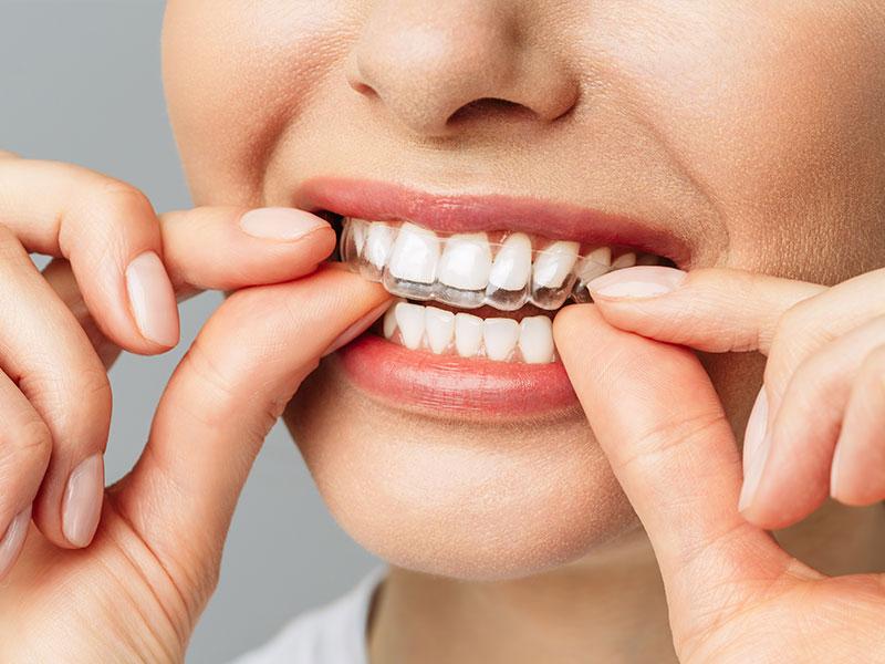 ortodoncia-invisible-malaga-2
