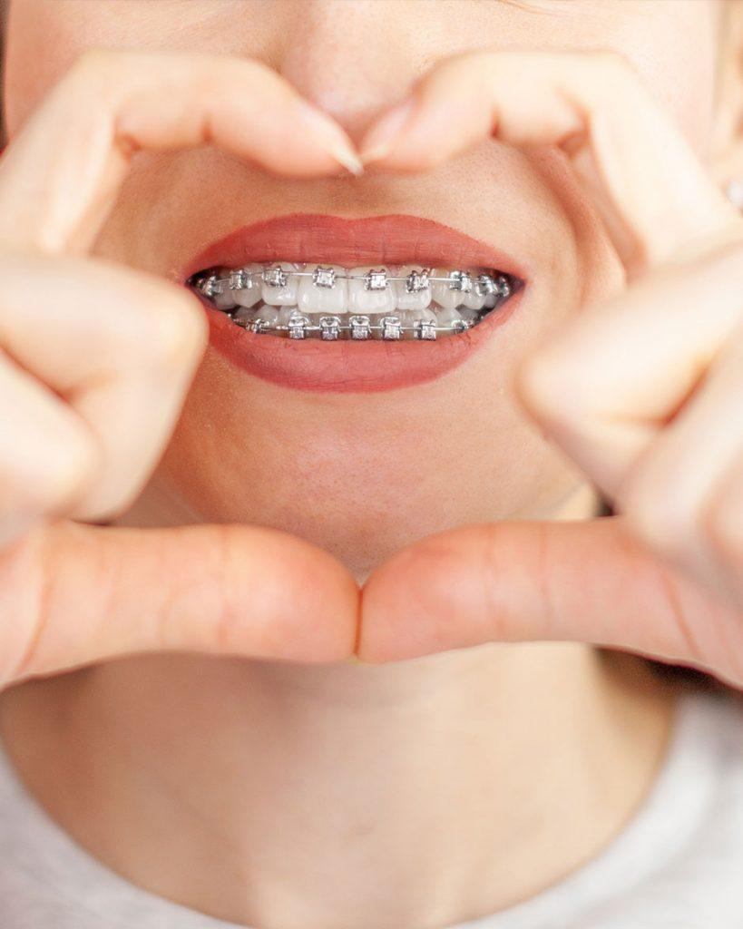ortodoncia-en-malaga-2