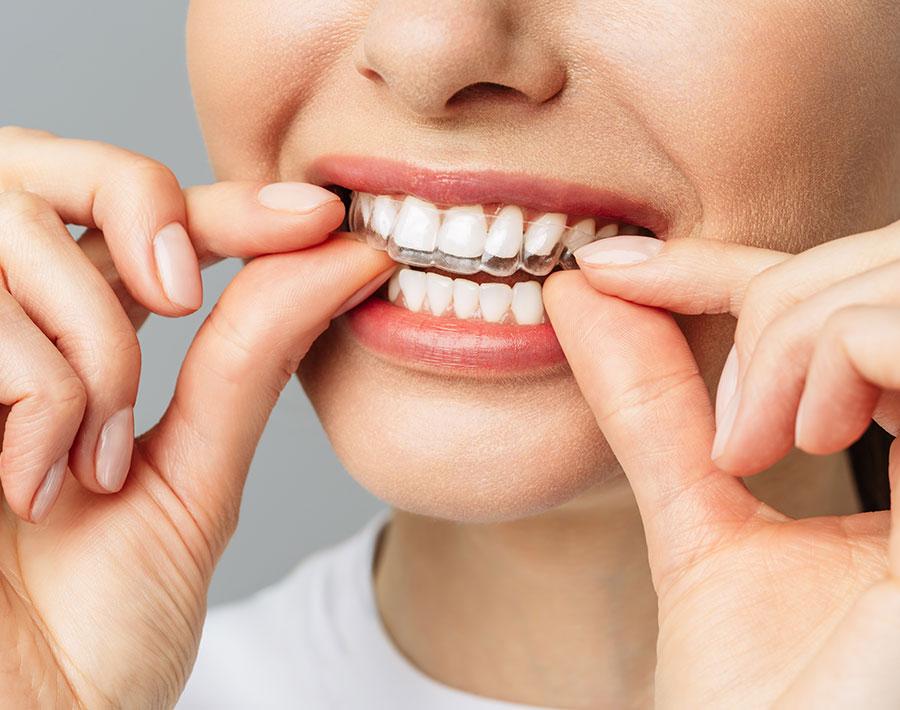 ortodoncia-invisible-5