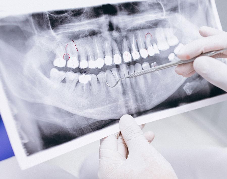ortopantomografia-malaga-2